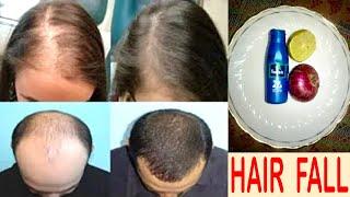 2 बूंद लगा लो बाल खूब घने हो जायेंगे  BEST SOLUTION For HAIR FALL At HOME  Balo Ka Jhadna Kaise Roke