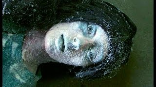 La Mujer que Sobrevivió Tras Estar Congelada (Caso Real) Mp3
