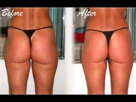 what-is-cellulite-gone---truth-about-cellulite