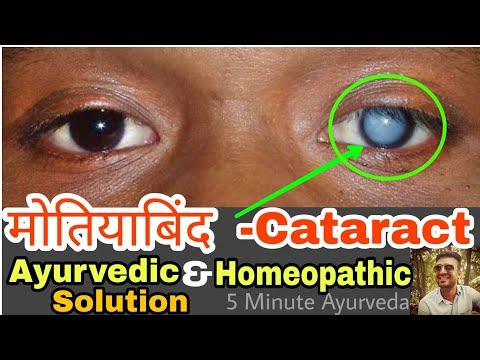 рдореЛрддрд┐рдпрд╛рдмрд┐рдВрдж 100% рдареАрдХ Guaranteed Home Cure For Cataract | рдореЛрддрд┐рдпрд╛рдмрд┐рдВрдж рдХреЛ рдЬрдбрд╝ рд╕реЗ рдорд┐рдЯрд╛рдиреЗ рдХрд╛ рдШрд░реЗрд▓реВ рдЙрдкрдЪрд╛рд░