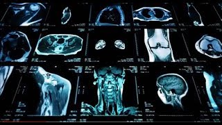 Augmenting Radiology with AI