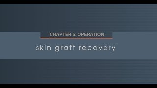 Chapter 5.5 Skin Graft Recovery