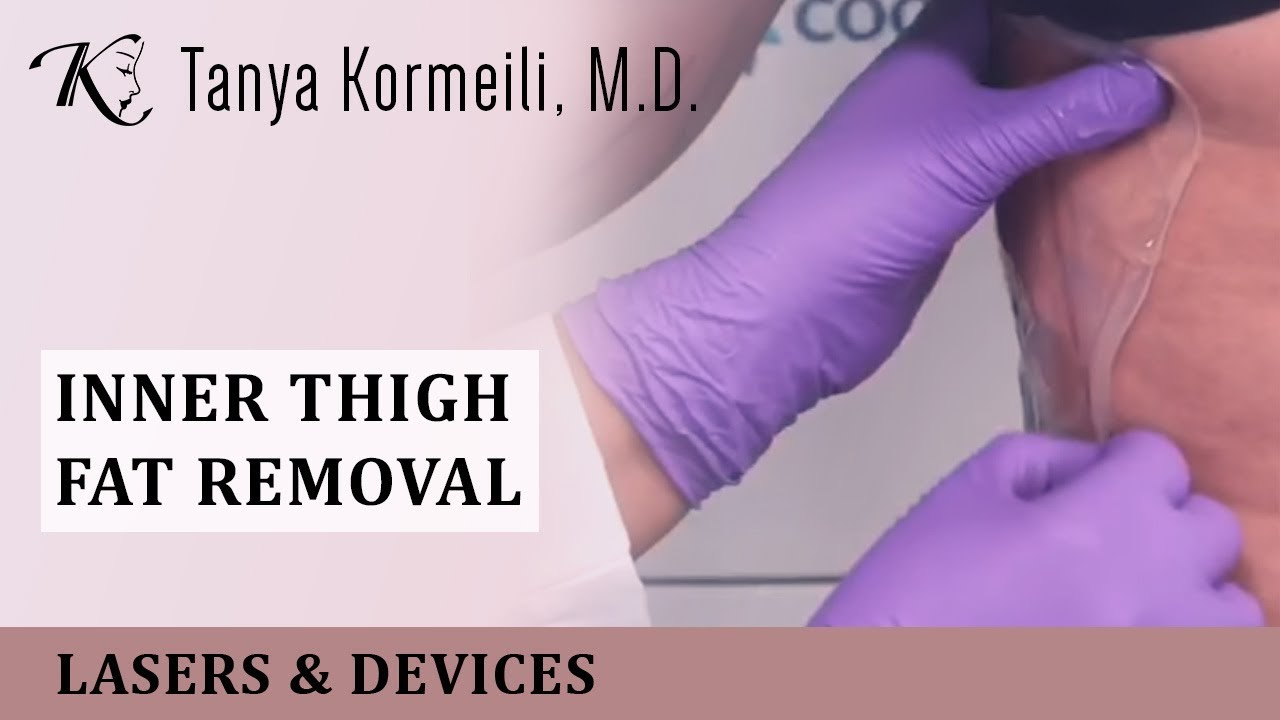 inner thigh fat removal youtube