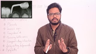 Paper Discussion 2 | NEET MDS 2019