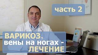 видео Причины варикоза