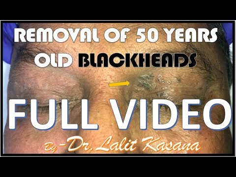 REMOVAL OF 50 YEARS OLD BLACKHEADS FULL VIDEO by DR.LALIT KASANA
