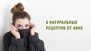 постер к видео 6 натуральных рецептов против акне