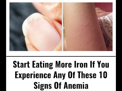 start-eating-more-iron-right-away-if-you-experience-any-of-these-10-signs-of-anemia