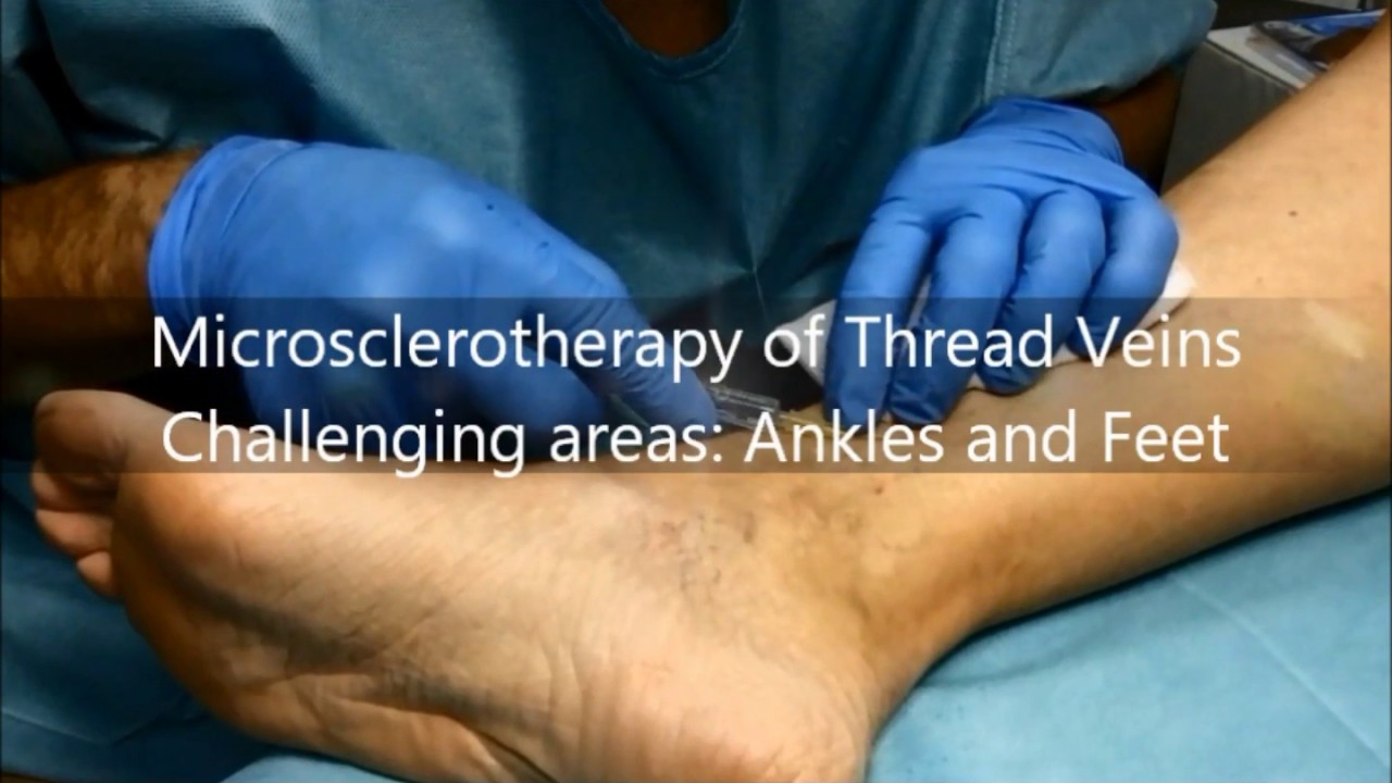 Microsclerotherapy Of Thread Veins Challenging Areas Ankles And