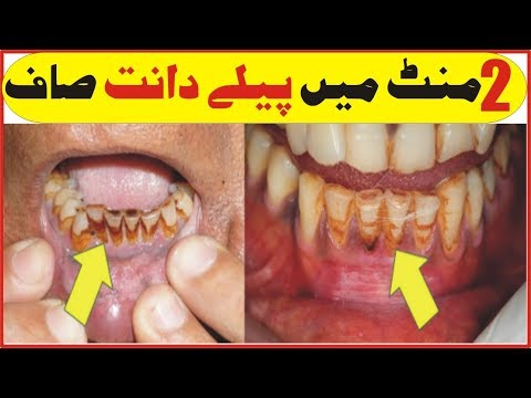 teeth-whitening-at-home- -teeth-whitening-uzma- -how-to-whitening-your-teeth-naturally