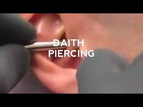 Daith Piercing Actual Video Clip