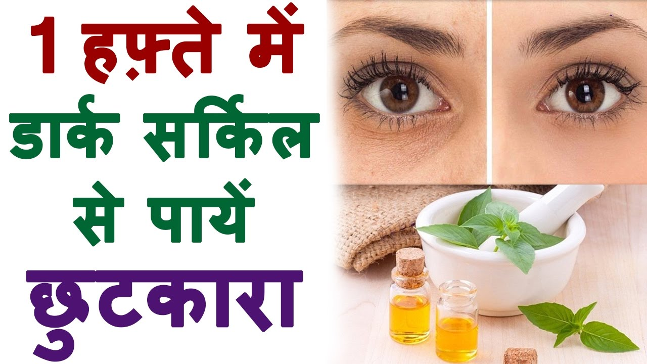 How To Remove Dark Circles Naturally At Home In Hindi