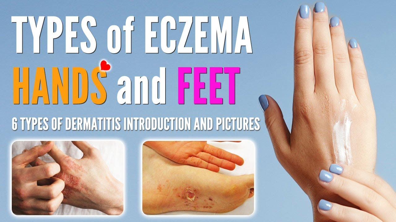 Types of Eczema on Hands and Feet | Hands and Feet Dermatitis Types with Pictures