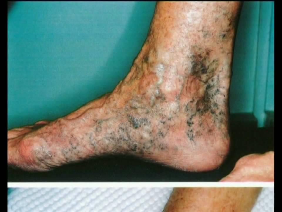 Il danno di posizione di vene che trattare lunguento