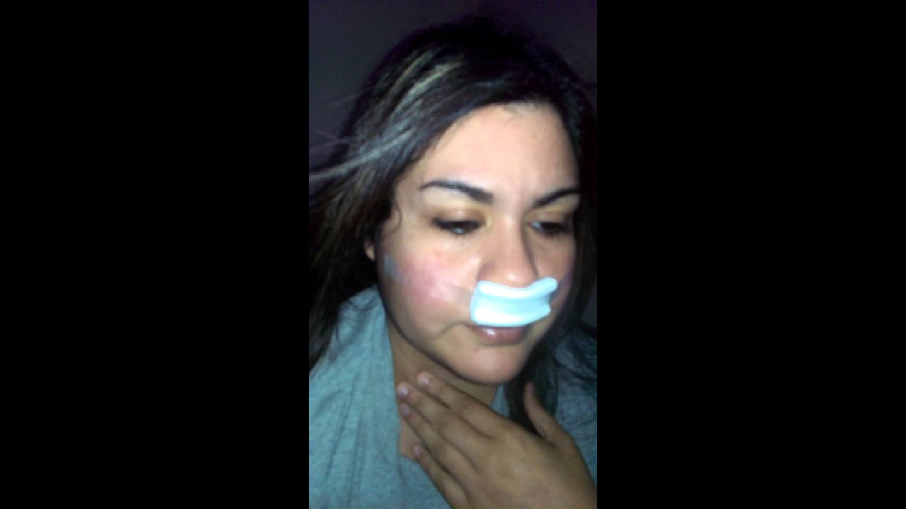 Septoplasty Recovery Time - #GolfClub