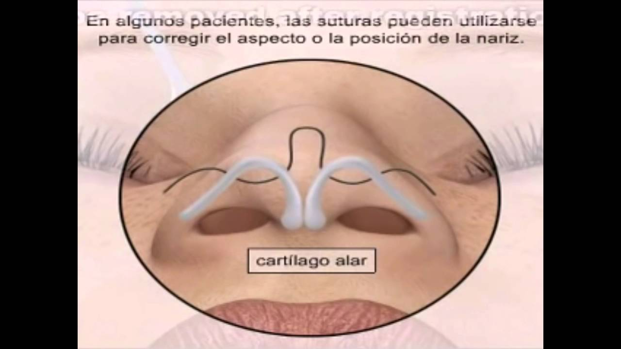 Rinoplastía - Cirugía De Nariz D.F. - YouTube