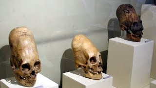 """Hidden Human Knowledge of the """"Elongated Skull"""" Leigh McCloskey"""