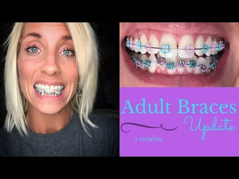 """ADULT BRACES"" 