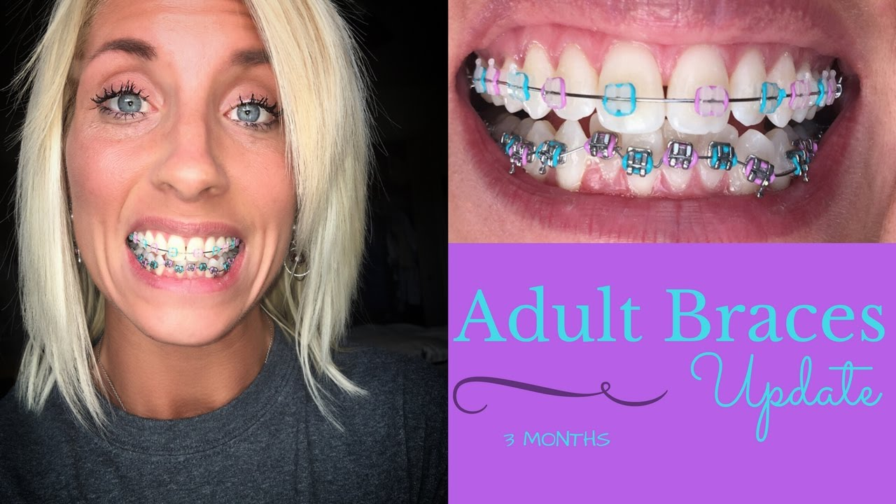 Braces For Adult 115