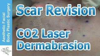laser scar revision with co2 laser part 02 by dr philip young bellevue seattle washington