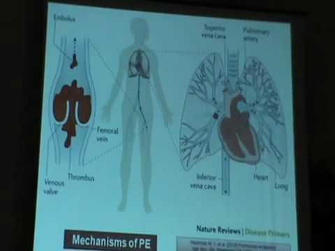 Pulmonary Embolism part one - Самые лучшие видео