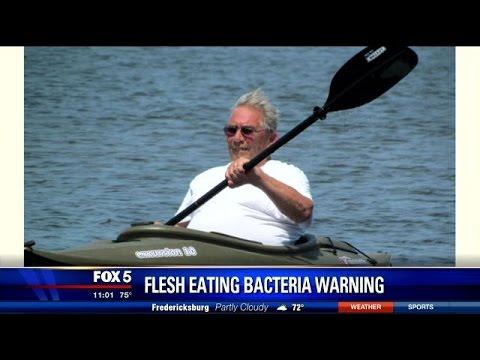 Flesh Eating Bacteria Ft Myers Beach Florida