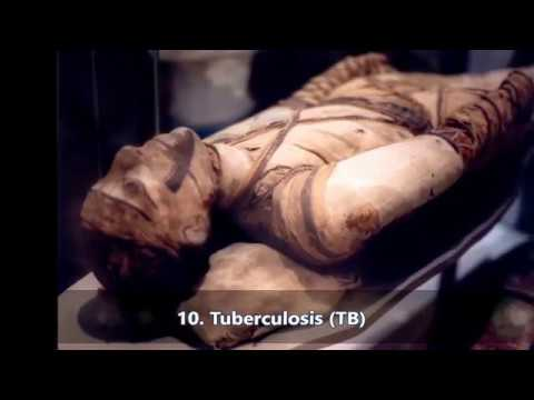 TOP 10  medical conditions. The list of World Health Organization WHO   DISCOVER