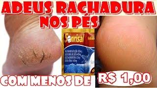Como ACABAR COM RACHADURAS NOS PÉS COM MENOS DE R$1,00