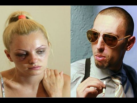 Alexandra Stan beating and injuries caused by her boyfriend and manager Marcel Prodan