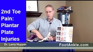Second Toe Pain and Plantar Plate Tears | Seattle Podiatrist