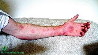 Klíšťata, alergie na maso a chronická kopřivka