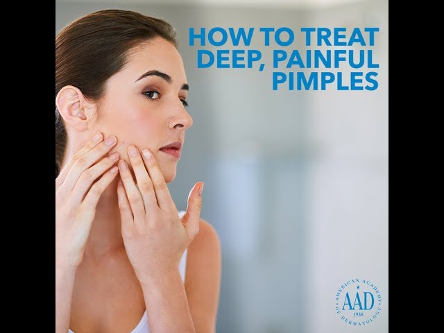 How to Treat a Deep, Painful Pimple