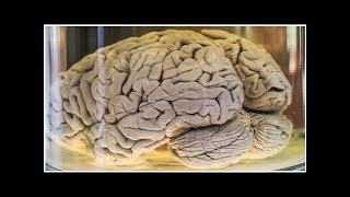 Why Do Our Brains Have Folds?