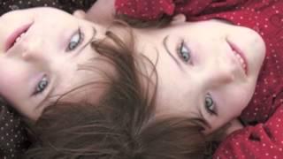 Craniopagus Twins