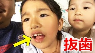 抜歯ライブ!!まーちゃんのグラグラ前歯を抜きます!応援してね! thumbnail