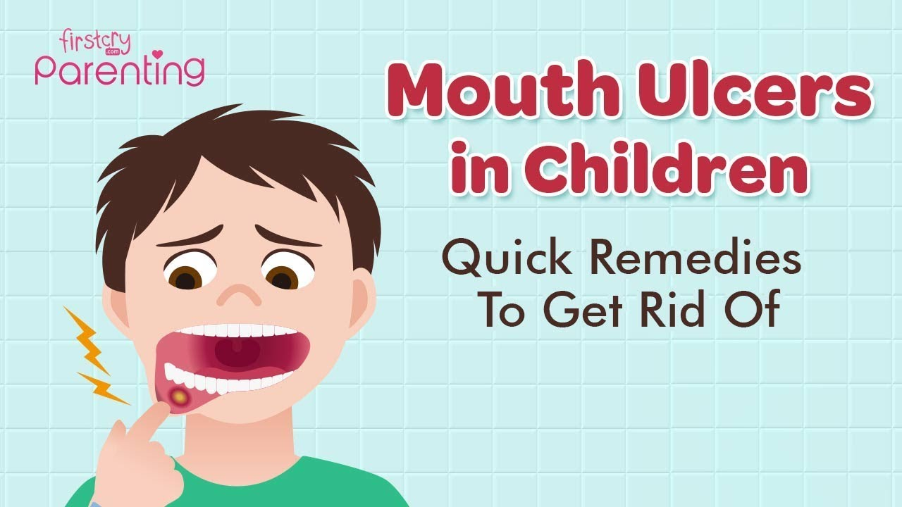 Mouth Ulcers Canker Sores In Children Causes Symptoms Treatment