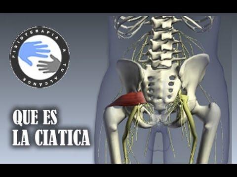 hqdefault - Sciatica Informacion En Espanol
