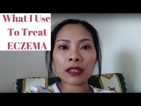 What I Use to Treat Eczema | My Children Have Eczema | Unboxing A Special Cream For Eczema