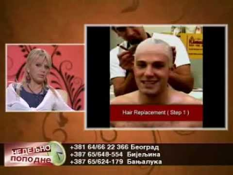 101 Hair Clinic - REŠITE PROBLEM SEDE KOSE from YouTube · Duration:  2 minutes 58 seconds