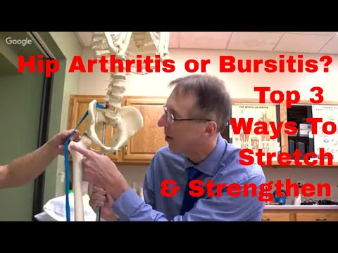 Hip Arthritis or Bursitis? Top 3 Ways to Stretch & Strengthen + 3 Tips to Stop Pain Now.