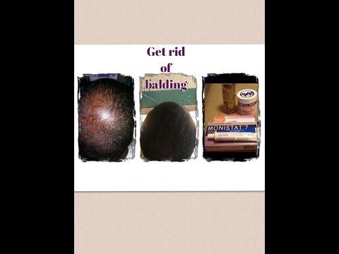 GROW  HAIR FAST & Get RID Of BALD SPOTS  Using MONISTAT 7
