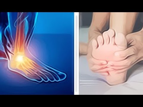 suffer from foot pain? here's How to treat and prevent plantar fasciitis...