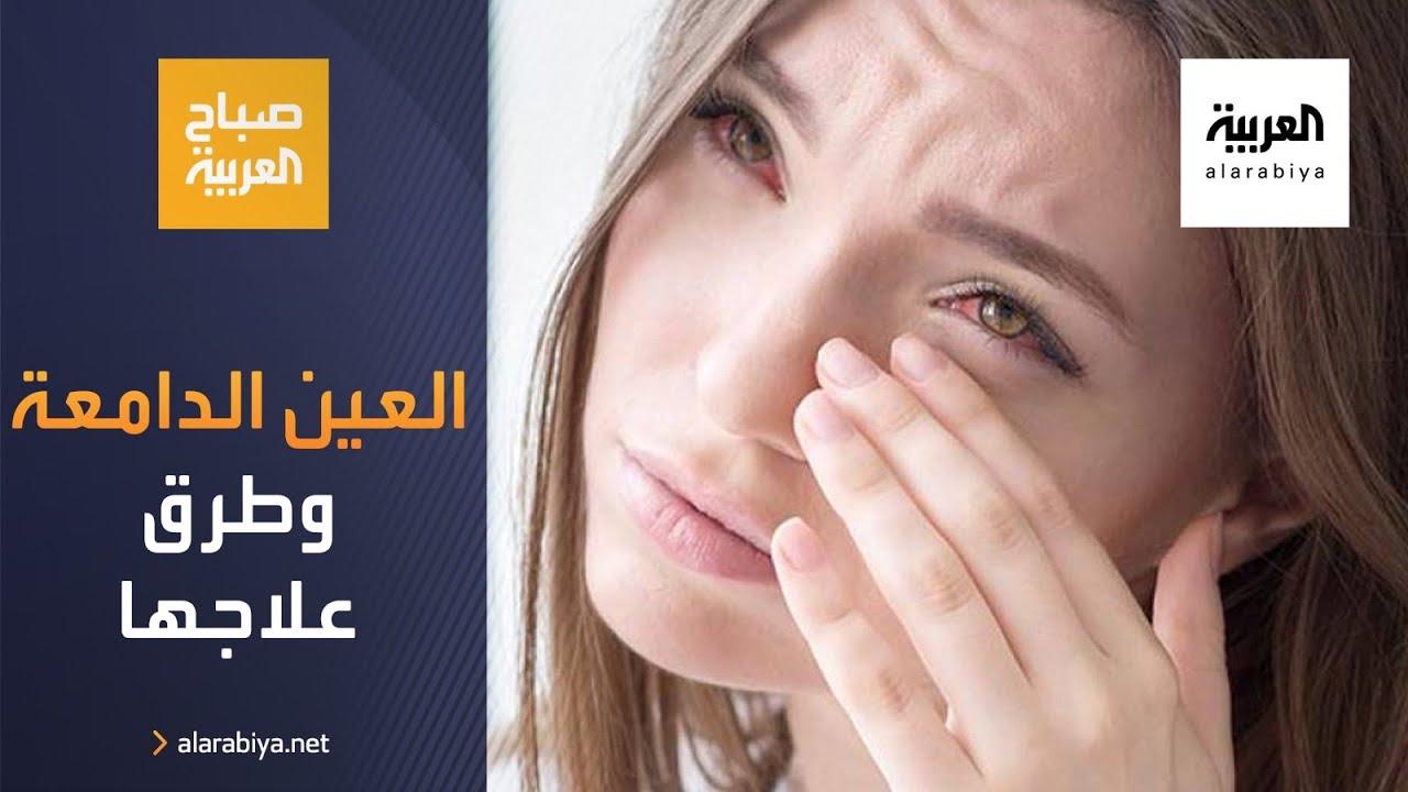 صورة فيديو : صباح العربية | ما أسباب العين الدامعة وطرق العلاج؟