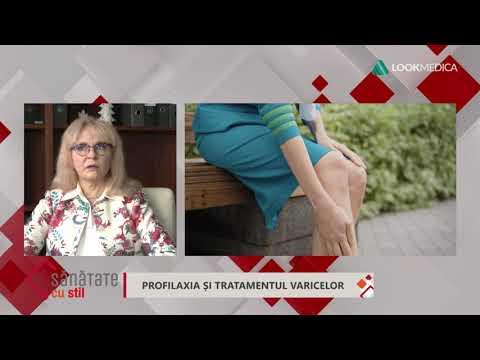 cartea varicose varicoză și contraceptivă