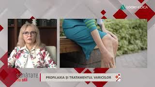varicele pot fi tratate cu noroi)