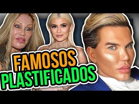 TOP 10 DA DIVA - Famosos plastificados feat. MANDY CANDY | Diva Depressão