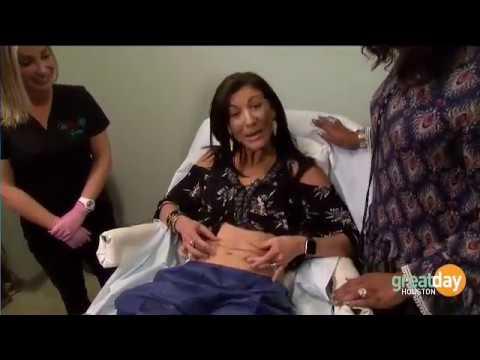 Houston Botox, facial fillers, juvederm, skin tightening