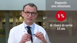 Traiter le cancer colorectal métastatique