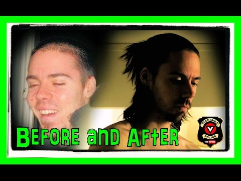 HAIR LOSS treatment with DIET. How I reversed Male Pattern Baldness