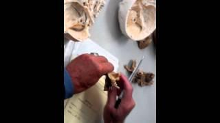 Кости черепа, височная кость
